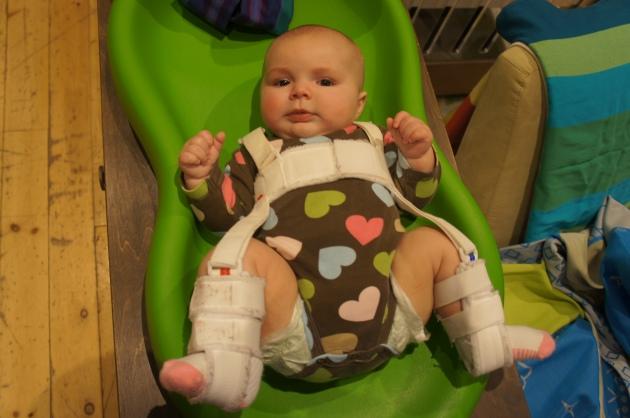 babywearing in a pavlik harness 5 months